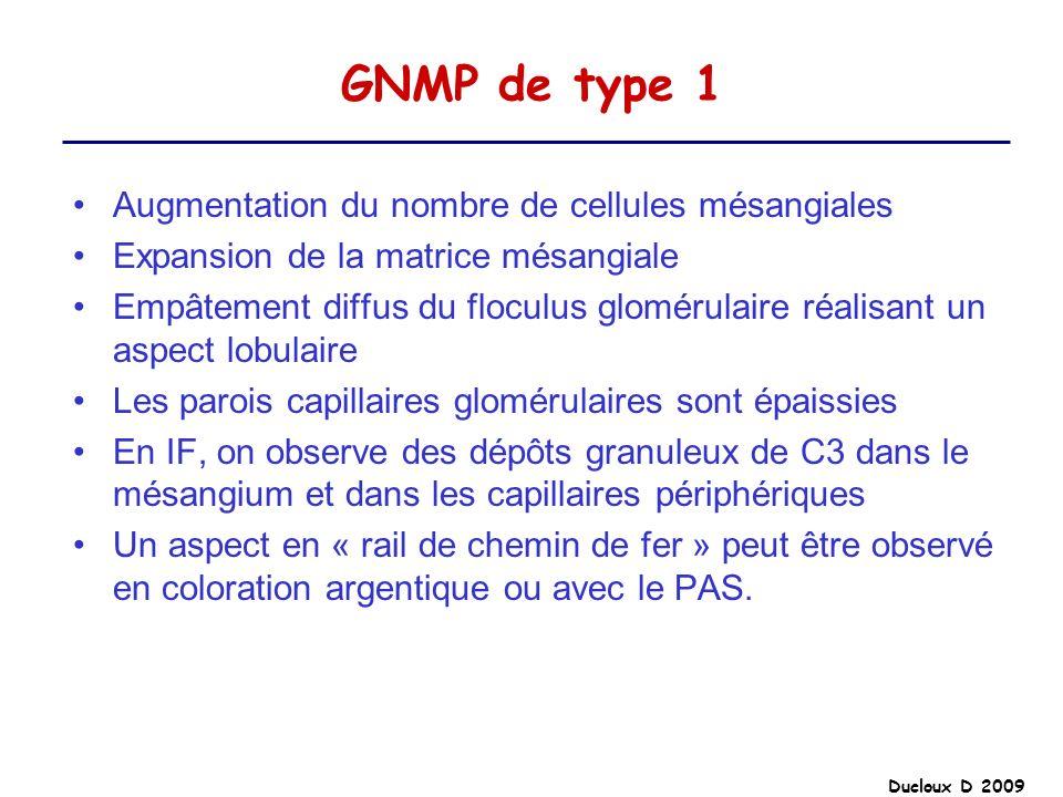 Ducloux D 2009 GNMP de type 1 Augmentation du nombre de cellules mésangiales Expansion de la matrice mésangiale Empâtement diffus du floculus glomérul