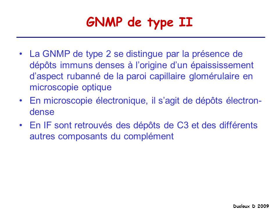 Ducloux D 2009 GNMP de type II La GNMP de type 2 se distingue par la présence de dépôts immuns denses à lorigine dun épaississement daspect rubanné de