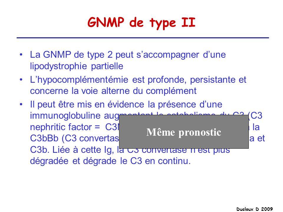 GNMP de type II La GNMP de type 2 peut saccompagner dune lipodystrophie partielle Lhypocomplémentémie est profonde, persistante et concerne la voie al