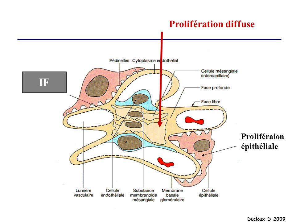 Ducloux D 2009 Prolifération diffuse Proliféraion épithéliale IF