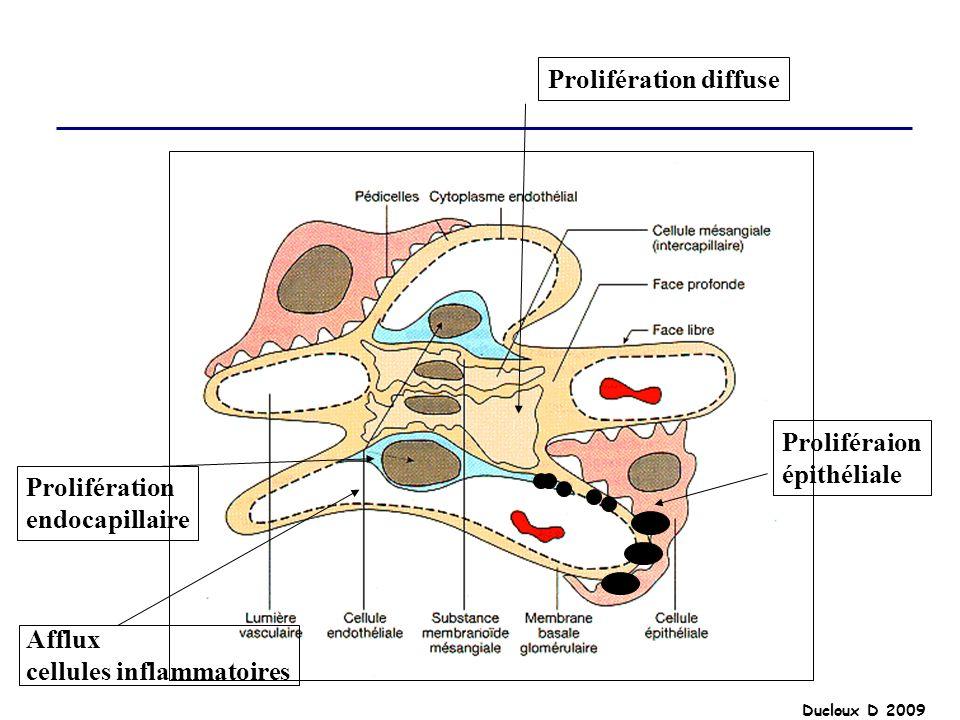 Ducloux D 2009 Prolifération diffuse Prolifération endocapillaire Proliféraion épithéliale Afflux cellules inflammatoires