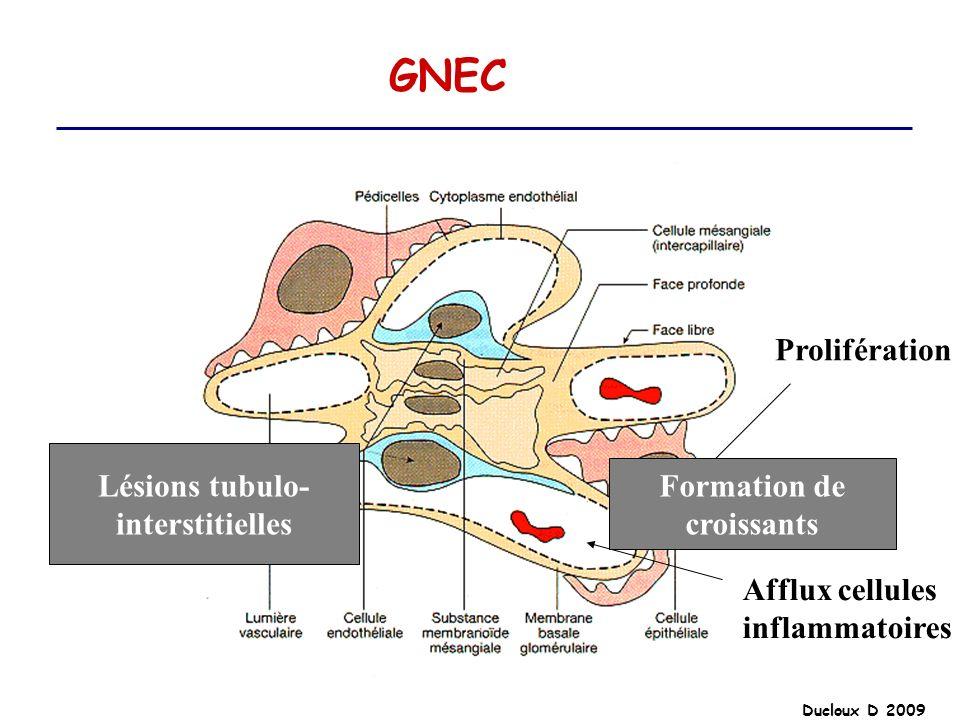 Ducloux D 2009 GNEC Prolifération Afflux cellules inflammatoires Formation de croissants Lésions tubulo- interstitielles