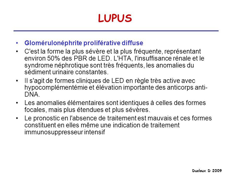 Ducloux D 2009 LUPUS Glomérulonéphrite proliférative diffuse C'est la forme la plus sévère et la plus fréquente, représentant environ 50% des PBR de L