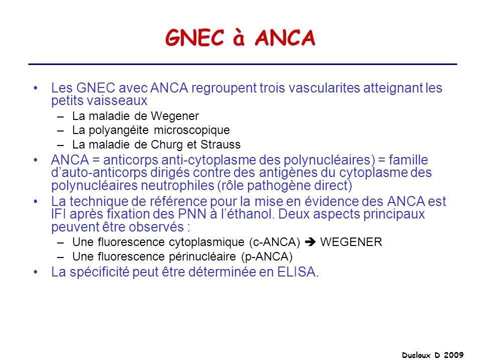 Ducloux D 2009 GNEC à ANCA Les GNEC avec ANCA regroupent trois vascularites atteignant les petits vaisseaux –La maladie de Wegener –La polyangéite mic