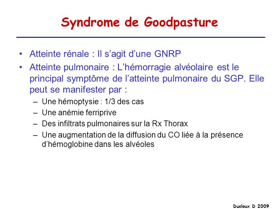 Ducloux D 2009 Syndrome de Goodpasture Atteinte rénale : Il sagit dune GNRP Atteinte pulmonaire : Lhémorragie alvéolaire est le principal symptôme de