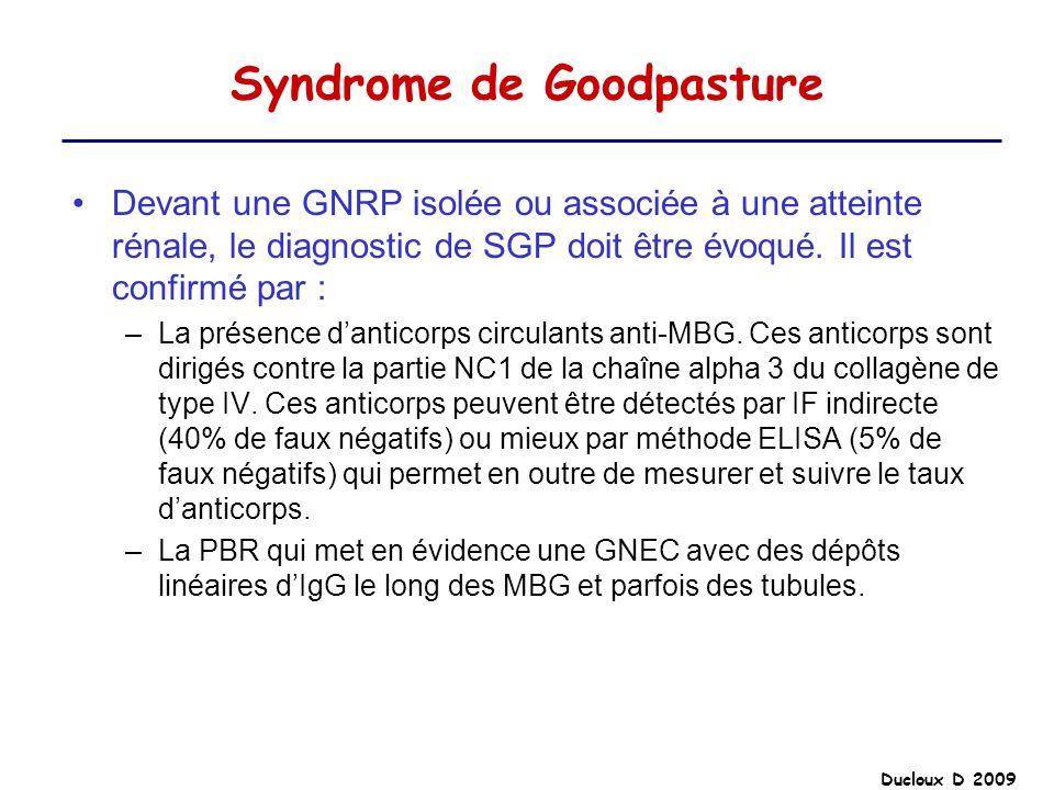 Ducloux D 2009 Syndrome de Goodpasture Devant une GNRP isolée ou associée à une atteinte rénale, le diagnostic de SGP doit être évoqué. Il est confirm