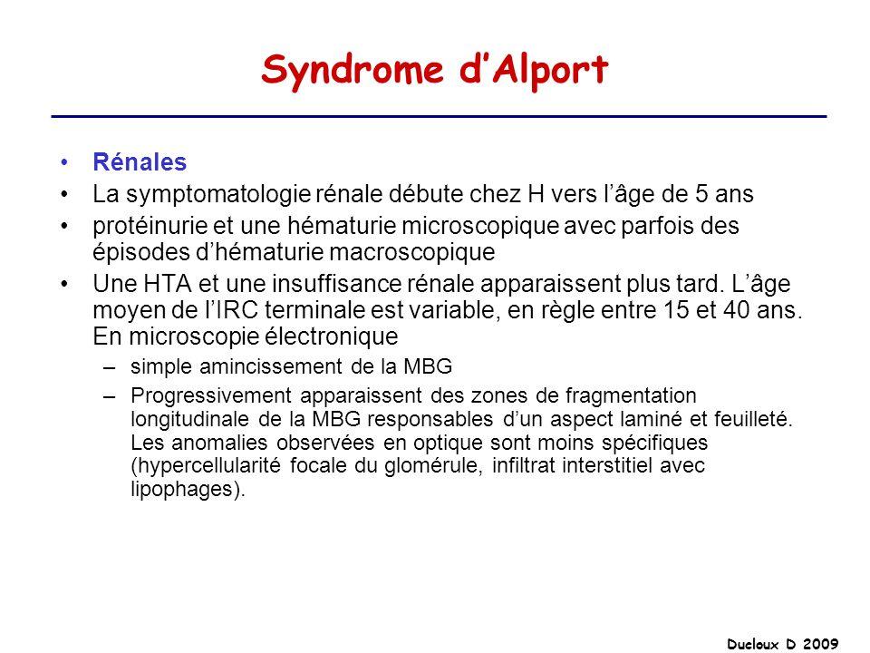 Ducloux D 2009 Syndrome dAlport Rénales La symptomatologie rénale débute chez H vers lâge de 5 ans protéinurie et une hématurie microscopique avec par