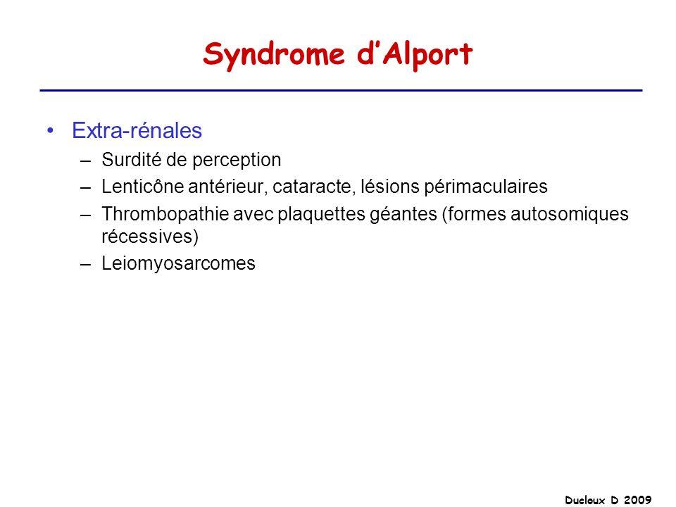 Ducloux D 2009 Syndrome dAlport Extra-rénales –Surdité de perception –Lenticône antérieur, cataracte, lésions périmaculaires –Thrombopathie avec plaqu