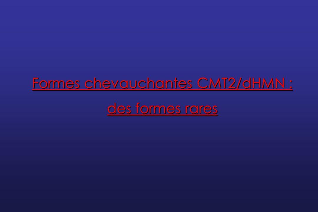 « dHMN » Neuropathie motrice distale héréditaire Amyotrophie spinale distale CMT2 Signes sensitifs cliniques et/ou électrophysiologiques