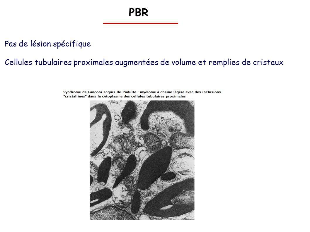 PBR Pas de lésion spécifique Cellules tubulaires proximales augmentées de volume et remplies de cristaux