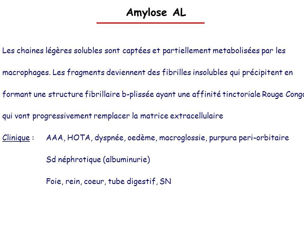 Amylose AL Les chaines légères solubles sont captées et partiellement metabolisées par les macrophages. Les fragments deviennent des fibrilles insolub