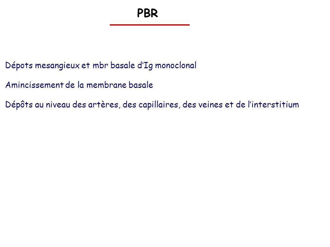 PBR Dépots mesangieux et mbr basale dIg monoclonal Amincissement de la membrane basale Dépôts au niveau des artères, des capillaires, des veines et de