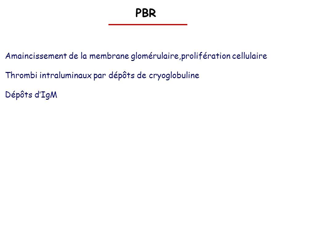 PBR Amaincissement de la membrane glomérulaire,prolifération cellulaire Thrombi intraluminaux par dépôts de cryoglobuline Dépôts dIgM