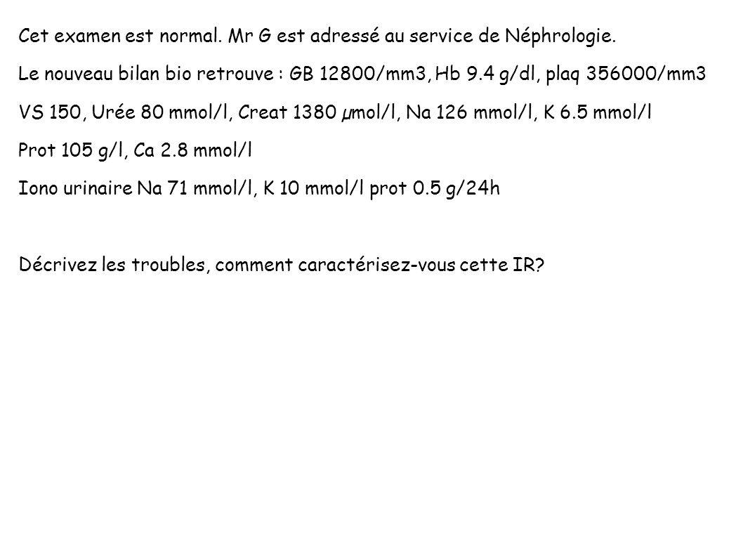 Cet examen est normal. Mr G est adressé au service de Néphrologie. Le nouveau bilan bio retrouve : GB 12800/mm3, Hb 9.4 g/dl, plaq 356000/mm3 VS 150,