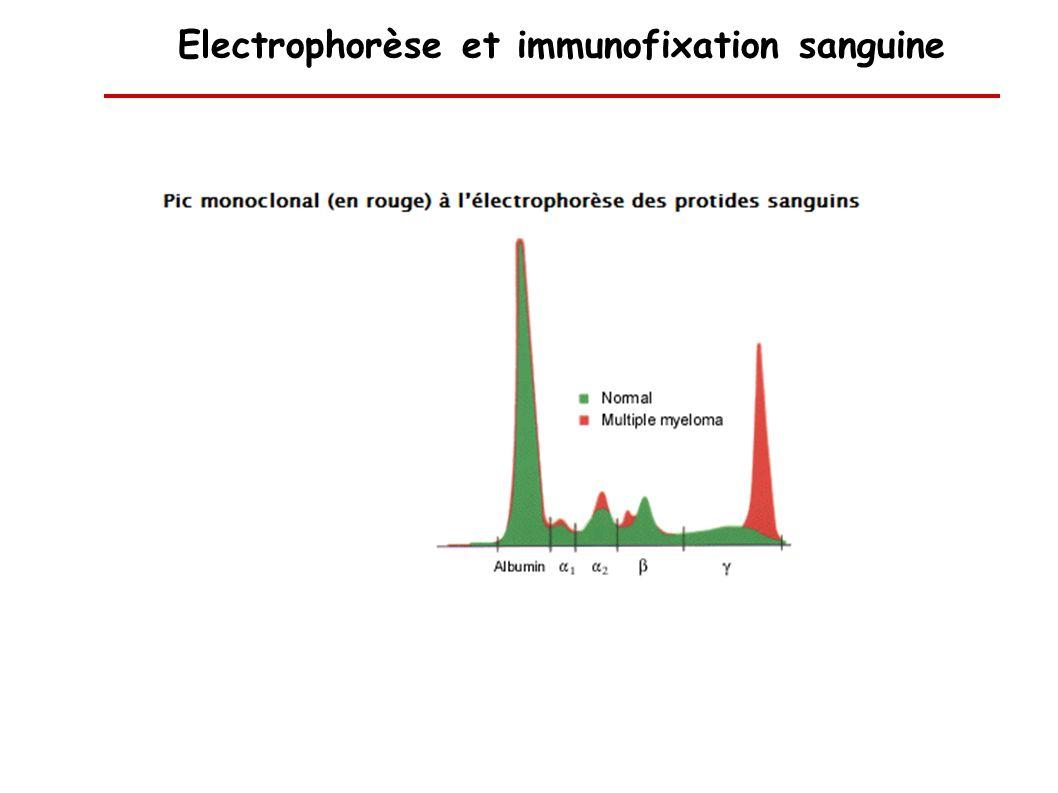 Electrophorèse et immunofixation sanguine