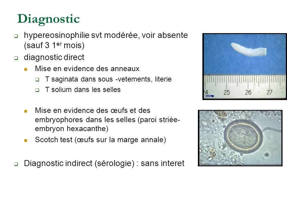 Diagnostic hypereosinophilie svt modérée, voir absente (sauf 3 1 er mois) diagnostic direct Mise en evidence des anneaux T saginata dans sous -vetemen