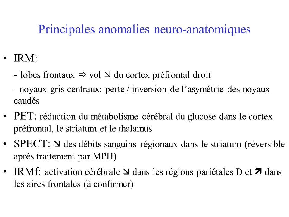 Principales anomalies neuro-anatomiques IRM: - lobes frontaux vol du cortex préfrontal droit - noyaux gris centraux: perte / inversion de lasymétrie d