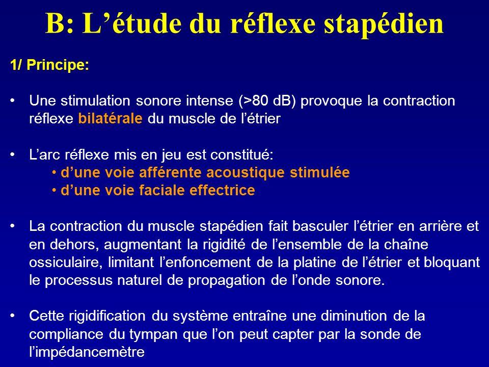 B: Létude du réflexe stapédien 1/ Principe: Une stimulation sonore intense (>80 dB) provoque la contraction réflexe bilatérale du muscle de létrier La