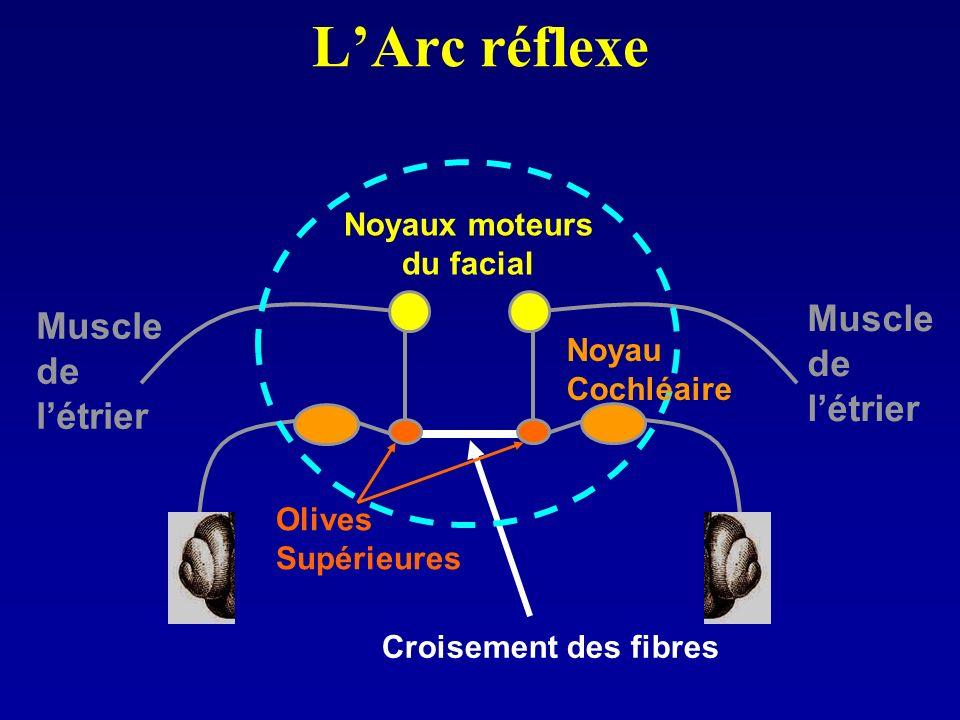 Croisement des fibres LArc réflexe Noyaux moteurs du facial Olives Supérieures Muscle de létrier Muscle de létrier Noyau Cochléaire