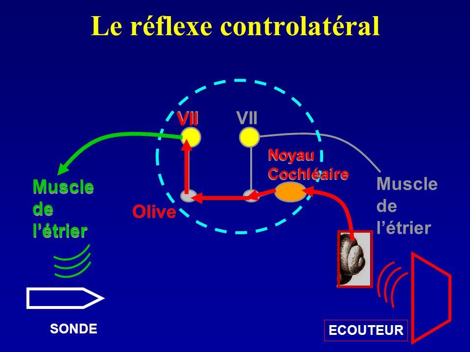 Le réflexe controlatéral VII Noyau Cochléaire Olive Muscle de létrier Muscle de létrier Olive Muscle de létrier Noyau Cochléaire VII ECOUTEUR SONDE