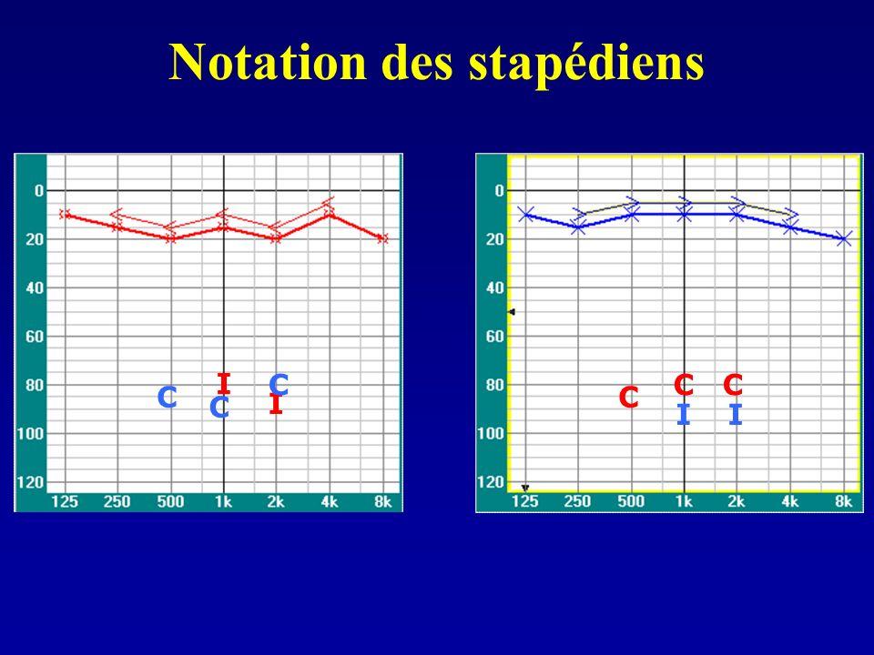 I I I I C C C C C C Notation des stapédiens