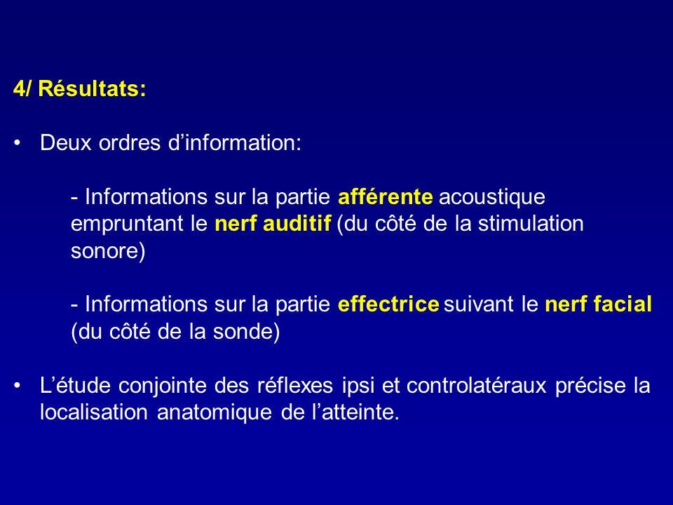 4/ Résultats: Deux ordres dinformation: - Informations sur la partie afférente acoustique empruntant le nerf auditif (du côté de la stimulation sonore