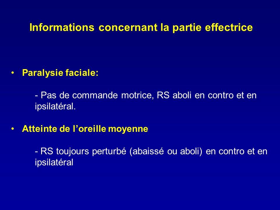Informations concernant la partie effectrice Paralysie faciale: - Pas de commande motrice, RS aboli en contro et en ipsilatéral. Atteinte de loreille