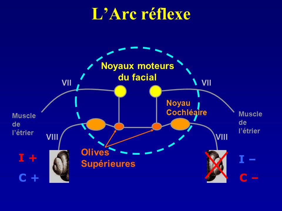 LArc réflexe Noyaux moteurs du facial Olives Supérieures Muscle de létrier Muscle de létrier Noyau Cochléaire I – C – I + C + VIII VII