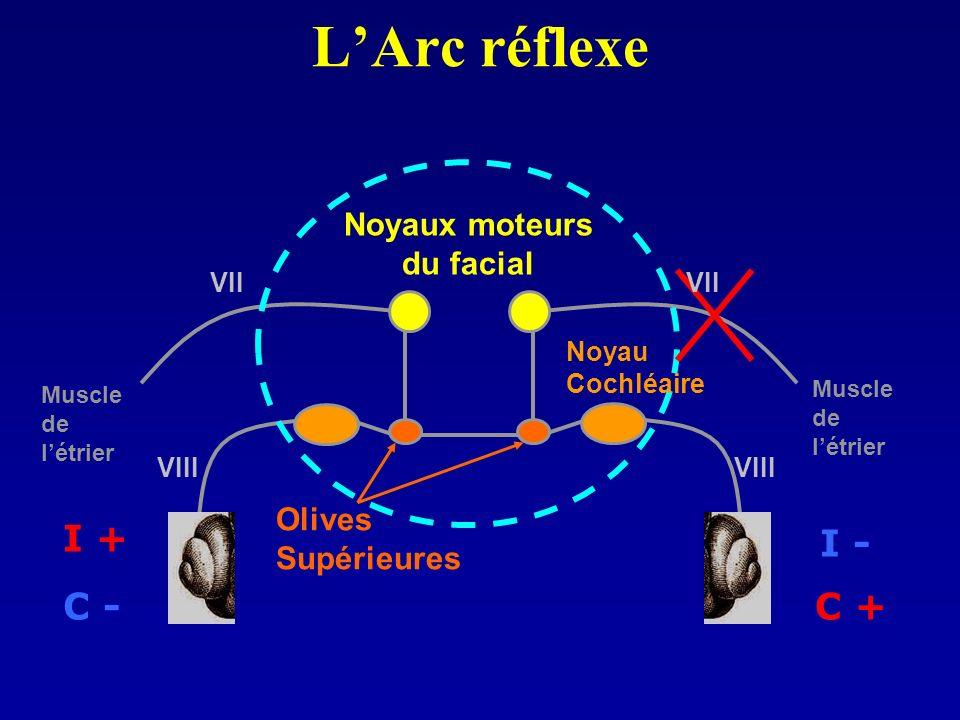 LArc réflexe Noyaux moteurs du facial Olives Supérieures I - C + I + C - Muscle de létrier Muscle de létrier Noyau Cochléaire VIII VII
