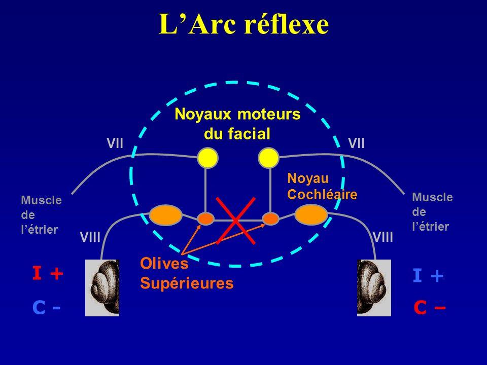 LArc réflexe Noyaux moteurs du facial Olives Supérieures I + C – I + C - Muscle de létrier Muscle de létrier Noyau Cochléaire VIII VII