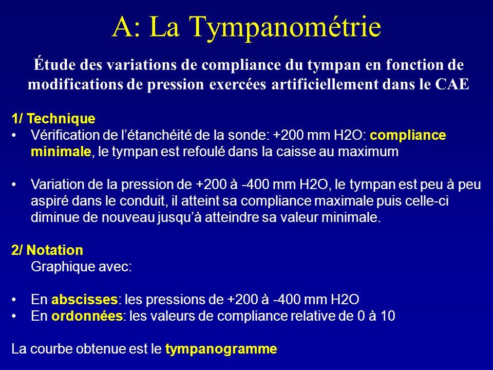 A: La Tympanométrie Étude des variations de compliance du tympan en fonction de modifications de pression exercées artificiellement dans le CAE 1/ Tec