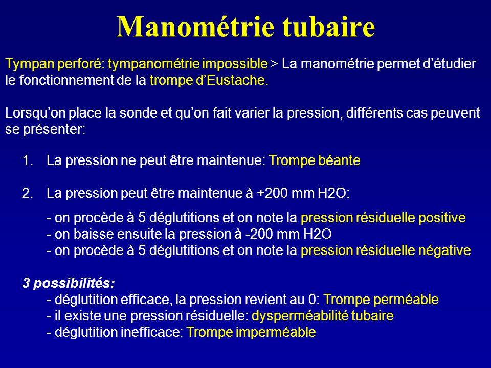 Manométrie tubaire Tympan perforé: tympanométrie impossible > La manométrie permet détudier le fonctionnement de la trompe dEustache. Lorsquon place l