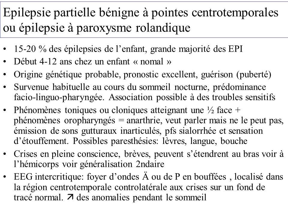 Epilepsie partielle bénigne à pointes centrotemporales ou épilepsie à paroxysme rolandique 15-20 % des épilepsies de lenfant, grande majorité des EPI