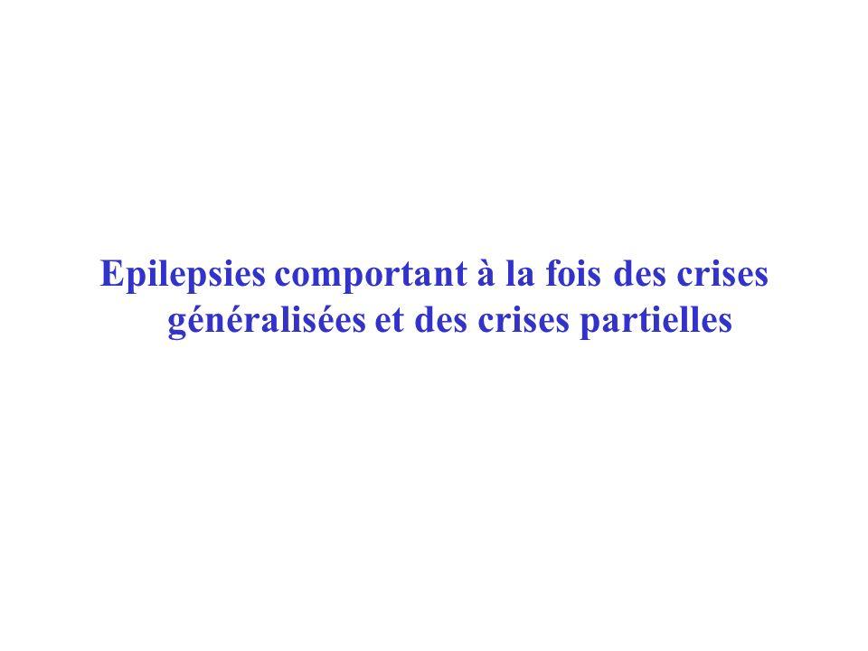 Epilepsies comportant à la fois des crises généralisées et des crises partielles