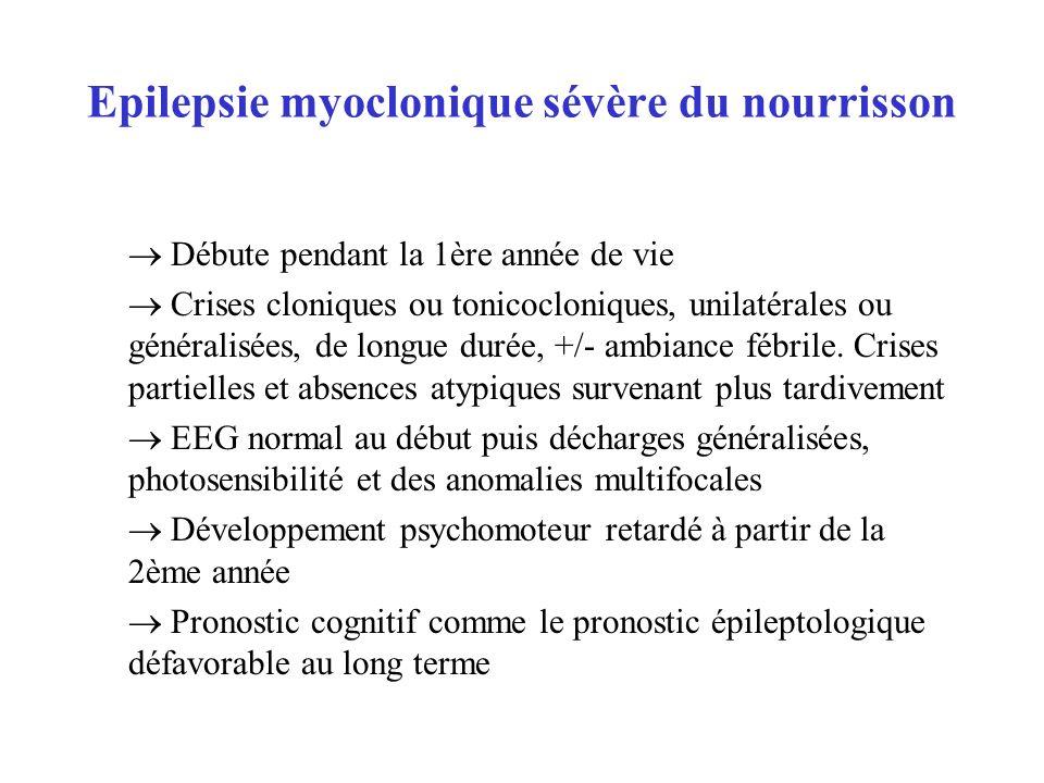Epilepsie myoclonique sévère du nourrisson Débute pendant la 1ère année de vie Crises cloniques ou tonicocloniques, unilatérales ou généralisées, de l