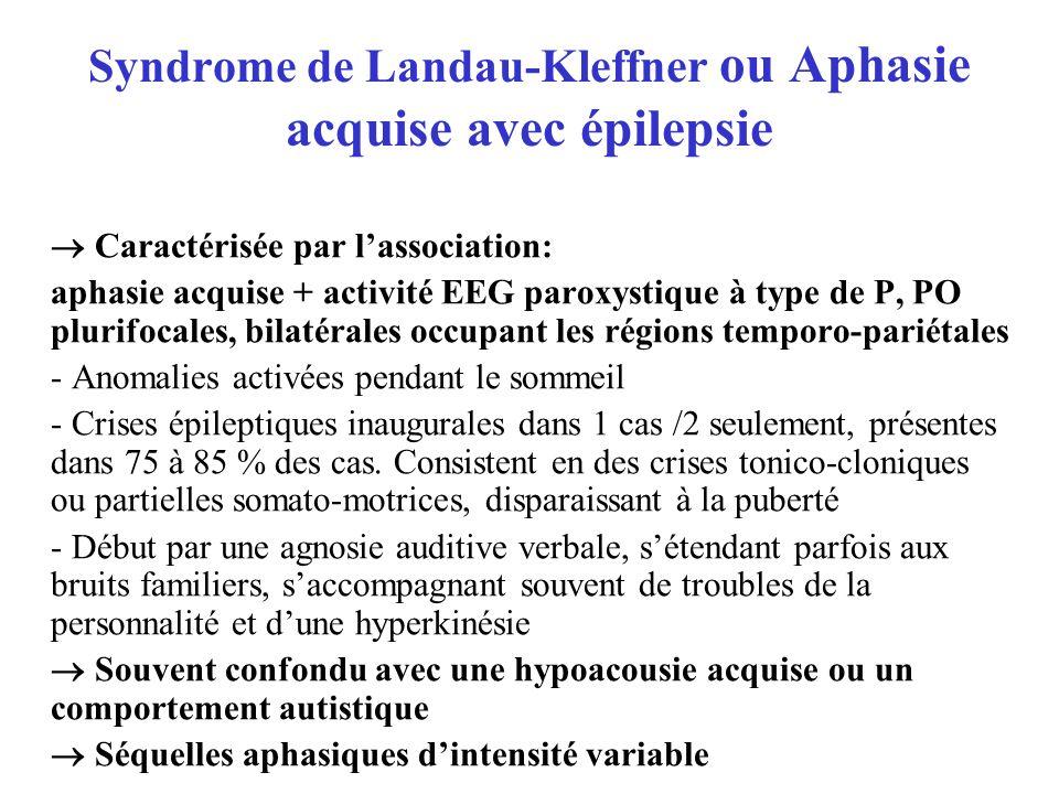 Syndrome de Landau-Kleffner ou Aphasie acquise avec épilepsie Caractérisée par lassociation: aphasie acquise + activité EEG paroxystique à type de P,