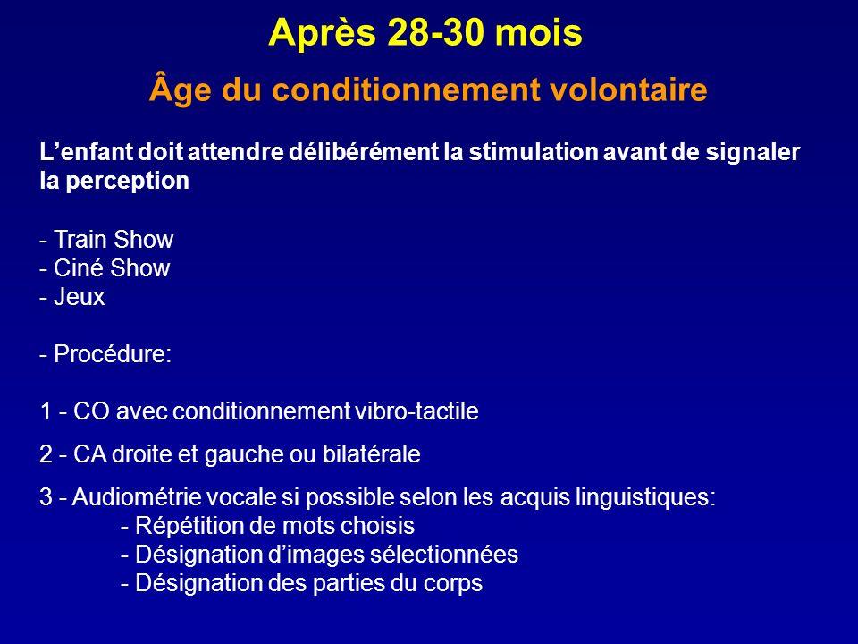 - Train Show - Ciné Show - Jeux - Procédure: 1 - CO avec conditionnement vibro-tactile 2 - CA droite et gauche ou bilatérale 3 - Audiométrie vocale si