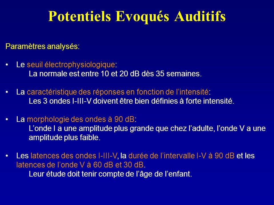 Potentiels Evoqués Auditifs Paramètres analysés: Le seuil électrophysiologique: La normale est entre 10 et 20 dB dès 35 semaines. La caractéristique d