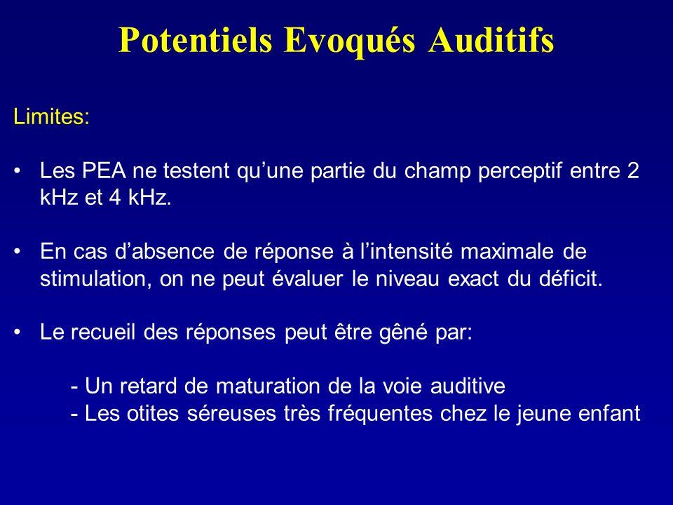 Potentiels Evoqués Auditifs Limites: Les PEA ne testent quune partie du champ perceptif entre 2 kHz et 4 kHz. En cas dabsence de réponse à lintensité