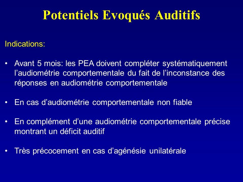 Potentiels Evoqués Auditifs Indications: Avant 5 mois: les PEA doivent compléter systématiquement laudiométrie comportementale du fait de linconstance