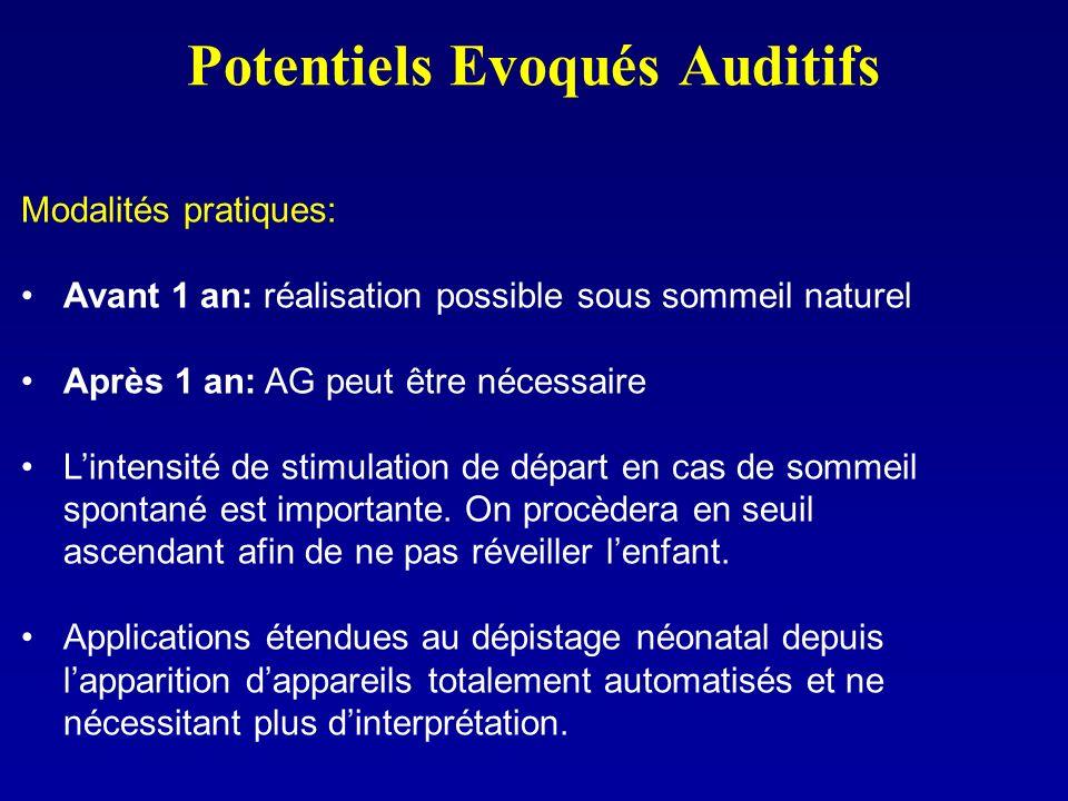 Potentiels Evoqués Auditifs Modalités pratiques: Avant 1 an: réalisation possible sous sommeil naturel Après 1 an: AG peut être nécessaire Lintensité