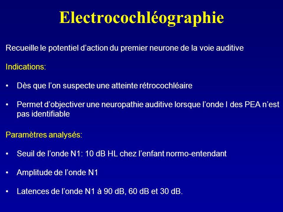 Electrocochléographie Recueille le potentiel daction du premier neurone de la voie auditive Indications: Dès que lon suspecte une atteinte rétrocochlé