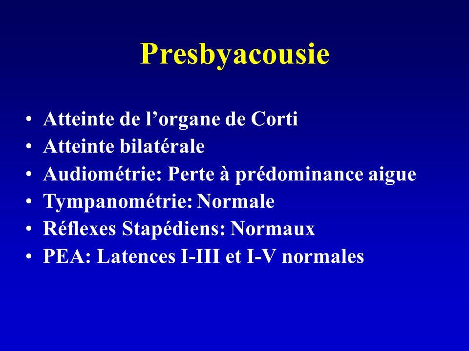 Presbyacousie Atteinte de lorgane de Corti Atteinte bilatérale Audiométrie: Perte à prédominance aigue Tympanométrie: Normale Réflexes Stapédiens: Normaux PEA: Latences I-III et I-V normales