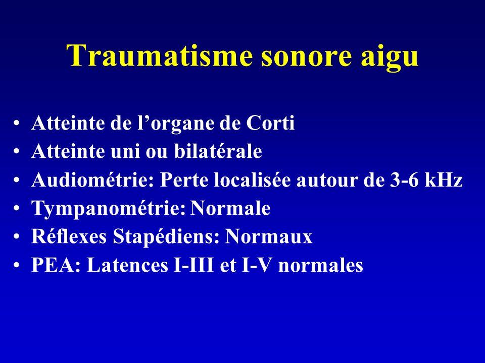 Traumatisme sonore aigu Atteinte de lorgane de Corti Atteinte uni ou bilatérale Audiométrie: Perte localisée autour de 3-6 kHz Tympanométrie: Normale Réflexes Stapédiens: Normaux PEA: Latences I-III et I-V normales