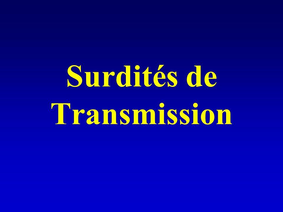 Surdités de Transmission