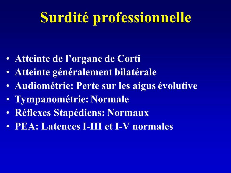 Surdité professionnelle Atteinte de lorgane de Corti Atteinte généralement bilatérale Audiométrie: Perte sur les aigus évolutive Tympanométrie: Normale Réflexes Stapédiens: Normaux PEA: Latences I-III et I-V normales