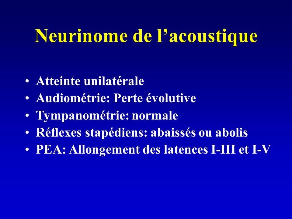 Neurinome de lacoustique Atteinte unilatérale Audiométrie: Perte évolutive Tympanométrie: normale Réflexes stapédiens: abaissés ou abolis PEA: Allongement des latences I-III et I-V