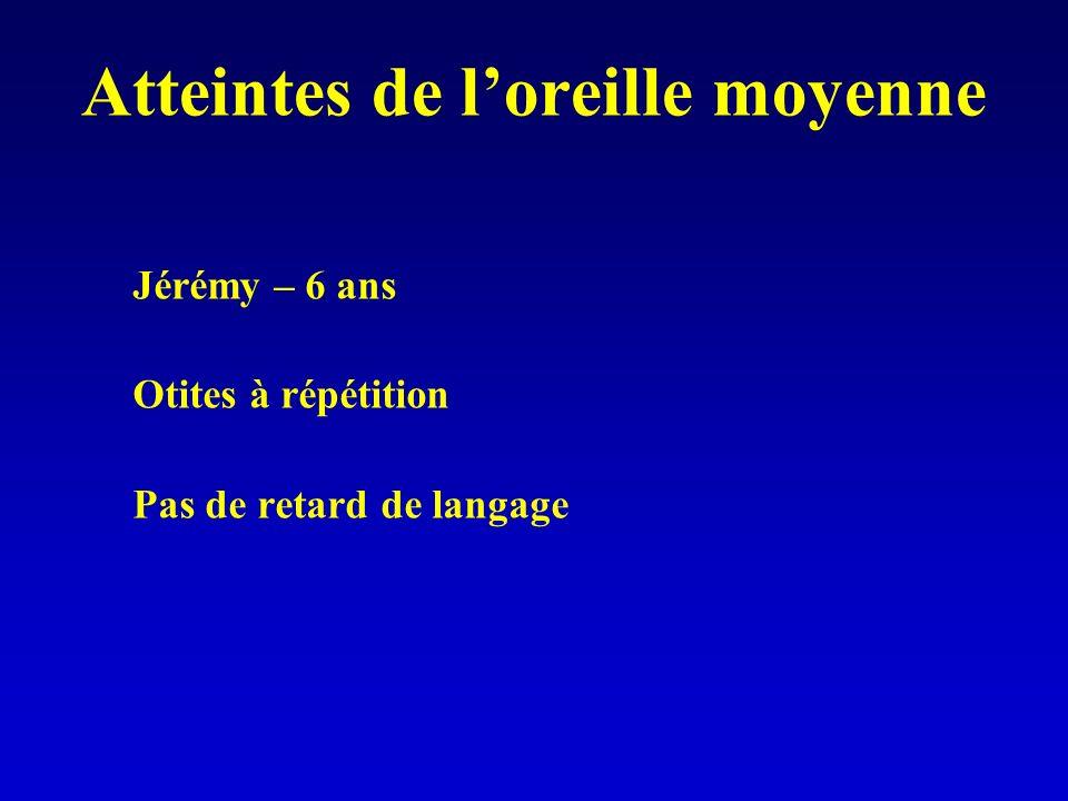 Atteintes de loreille moyenne Jérémy – 6 ans Otites à répétition Pas de retard de langage