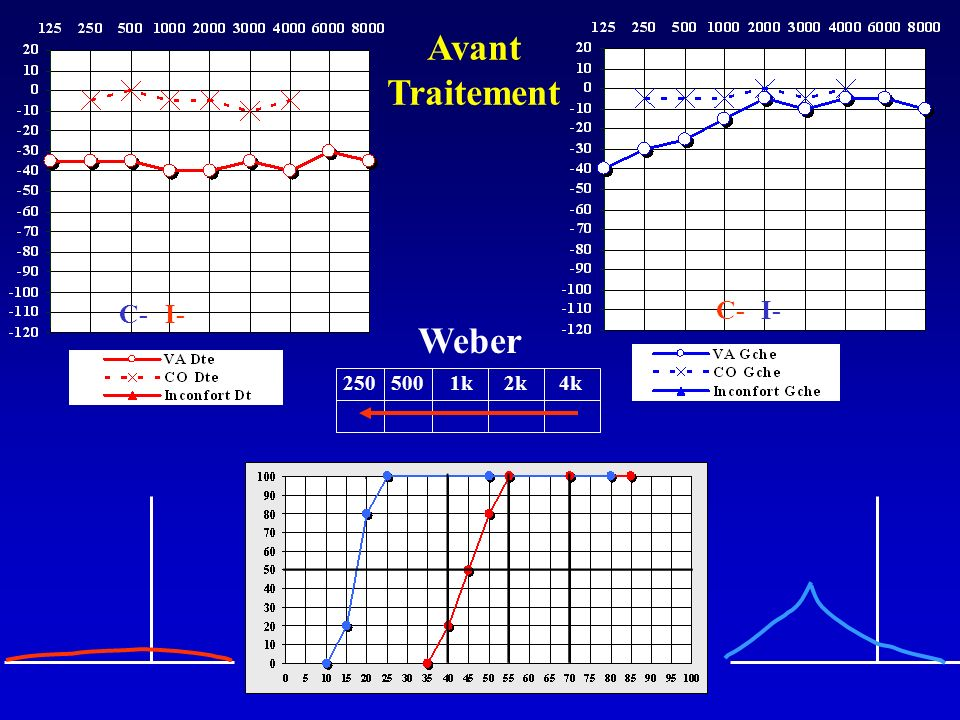 Weber 250 500 1k 2k 4k I- C- Avant Traitement