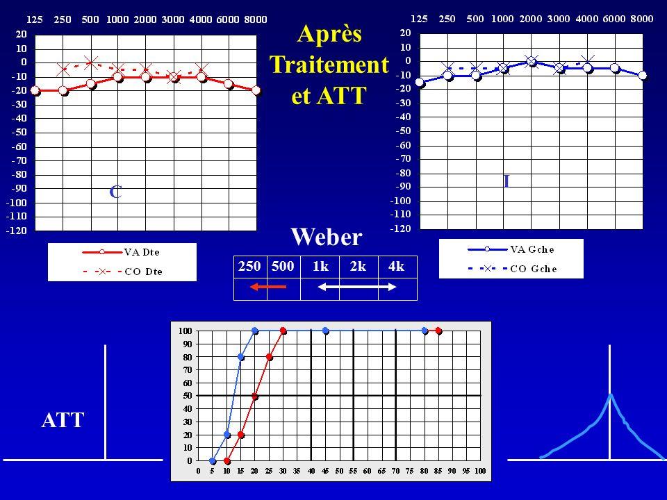 Weber 250 500 1k 2k 4k I C ATT Après Traitement et ATT